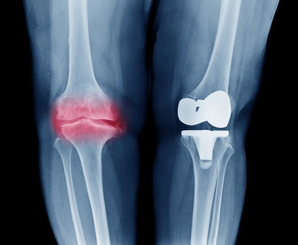 Total Knee Replacement - Knee Replacement Operation - OA Knee Pain