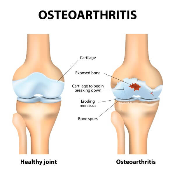 Symptoms Of Osteoarthritis - OA Symptoms - OA Knee Pain
