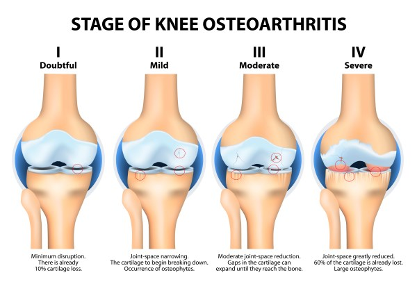 What Is Osteoarthritis - Osteoarthritis Knee - OA Knee Pain