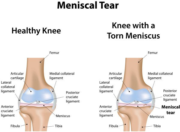 Torn Cartilage Injury - Meniscus Tear - OA Knee Pain